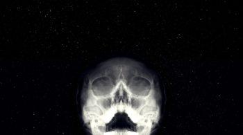 Skull Landscape
